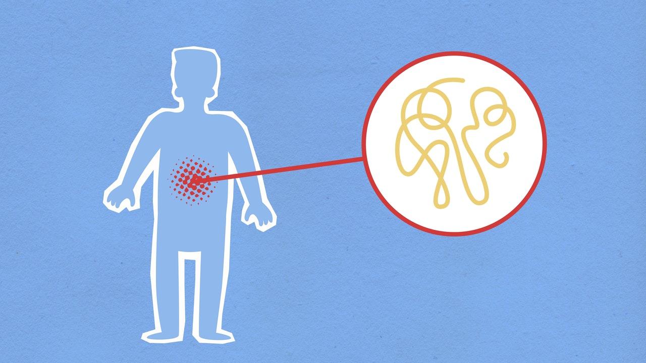 Osteopatia wisceralna